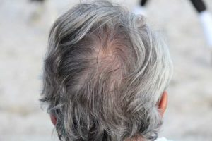 Kreisrunder Haarausfall in Folge von Zinkmangel.